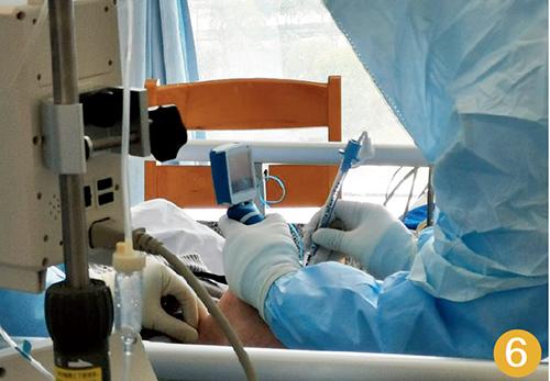 59-5 麻醉师在三级防护下,为患者进行插管操作,难度远大于平时。