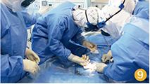 61-1 在舱内为V-A ECMO 抢救成功的病人撤机时,缝合股动脉。